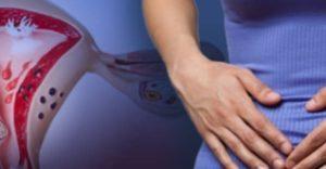 Эндометриоз (боль в заднем проходе и спайки)