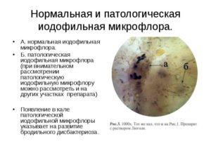 Дрожжевые грибы и йодофильная флора в кале у грудничка
