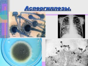 Чем лечить аспергиллез уха