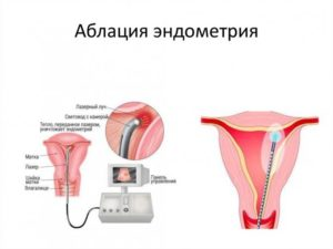Эндометрит и соэ