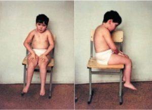 Миопатия мерозин негативная