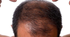 Чёрные жёсткие волосы на теле