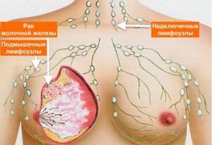 Можно ли простудить грудь?