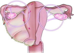 Эндометриоидная киста боли справа и отдают в ногу