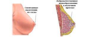 Выделение крови из соска груди при его надавливании