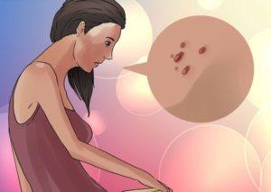 Вирус папилломы человека при беременности