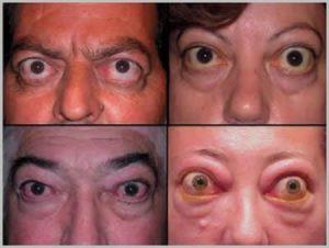 Выпуклость глаз после операции на щетовидную железу
