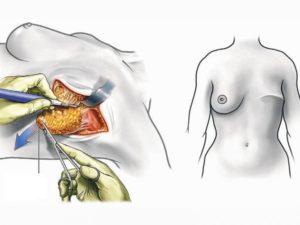 Можно ли делать биозавивку после рака молочной железы
