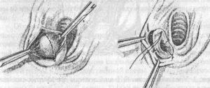 Внутренняя шишка на большой половой губе