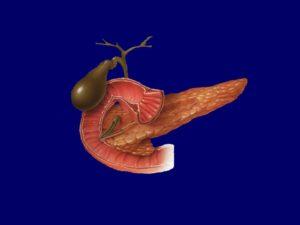 Дискинезия желчного пузыря хронического панкреатита