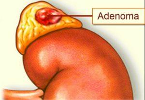 Что делать если обнаружили аденому надпочечника