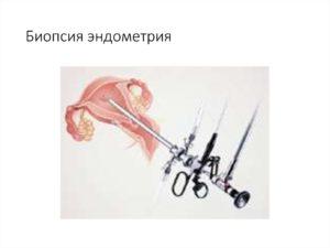 Миома и биопсия