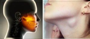 Воспалились лимфоузлы под челюстью, рот неоткрывается. Как безболезненно разжать челюсть