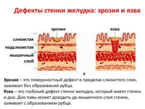 Можно колоть цефтриаксон при эрозии желудка?