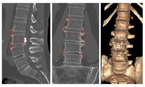 Деформирующий остеохондроз