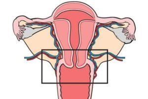 Дисплазия и эндометриоз