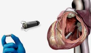 УЗИ и кардиостимулятор