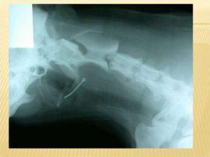 Может ли кость находится в горле длительное время