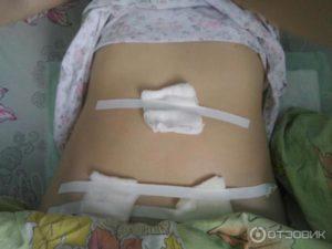 Месячные после операции