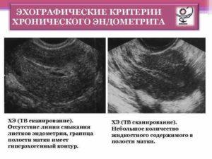 Эндометрия, полость матки контур неровный