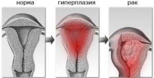 Дипроспан, гиперплазия эндометрия