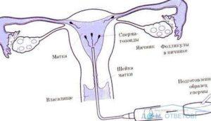 Можно ли забеременеть от спермы в анальном отверстии