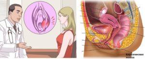 Воспаление нижней половой губы возле влагалища