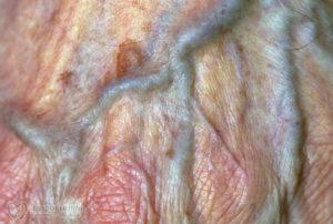 На внутренней половой губе у влагалища ощущается шероховатость. Был зуд.