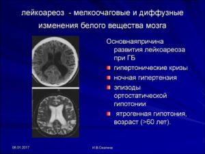 Мелкоочаговые поражения белого вещества головного мозга