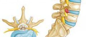 Экструзия L4-5, люмбоишиалгия, радикулопатия l5