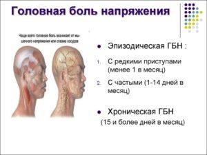Напряжение в голове