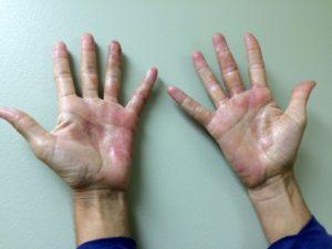 Кожа рук после попадания спермы