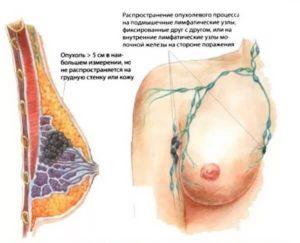 Над грудью уплотнение