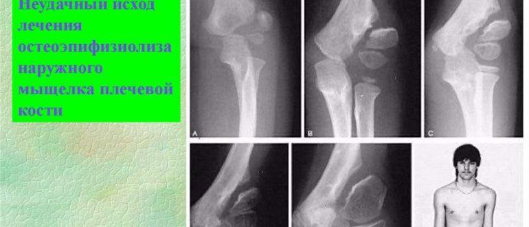 Частые переломы у ребенка 7 лет