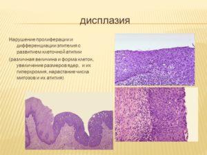 Дисплазия и пролиферация