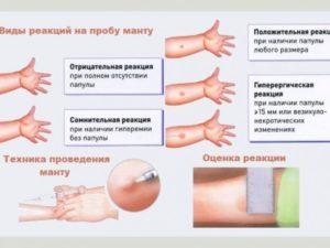 Можно ли делать пробу манту при реактивном панкреатите