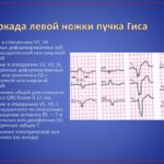 Дексаметазон и цефтриаксон вв после прокола состояние нормальное
