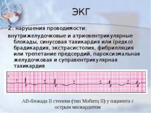 Нарушение внутрижелудочковой проводимости, синусовая брадикардия