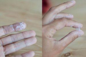 Выделения с резким запахом после Лактожиналь
