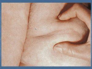 Впадина на молочной железе