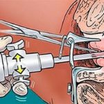 Давление 110/65 артериальная гипертензия ли это
