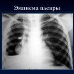 Впр кишечника: есть ли необходимость обследования