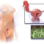 Диализ при онкологии