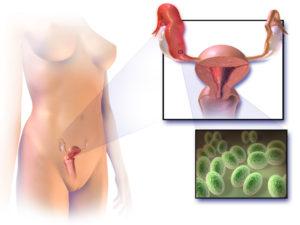 Можно ли беременеть с уреаплазмой