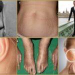 Что означают результаты биопсии и посоветуйте схему(лекарства) лечения