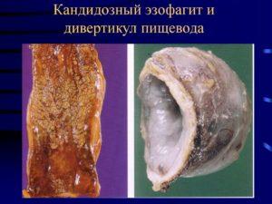 Микозный эзофагит