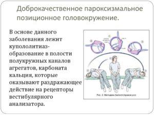 Доброкачественное позиционное головокружение