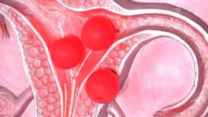 Эндометриоз и полип