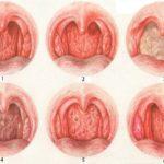 Может ли приём анаболиков спровоцировать эпилепсию