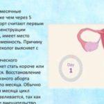 Нарост на соске во время беременности